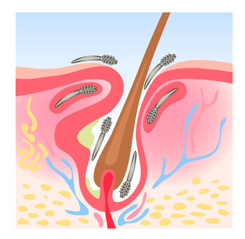 Demodicosis (Demodex)