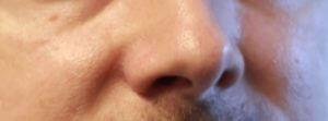 demodex-milben-gesicht-demoderm-therapie-6-monate-spaeter